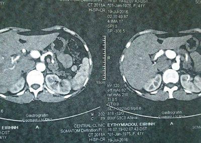 hepatic-art-an-1