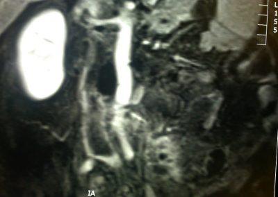 MRI_3-12